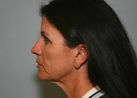 Facelift Patient 11393 Photo 3