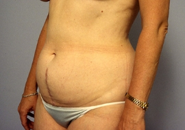 Liposuction Patient 94552 Photo 3