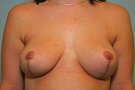 Breast Reduction Patient 83769 Photo 2