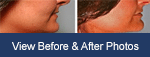 Rhinoplasty Highlands, NC